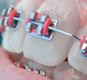 Accelerated Orthodontics