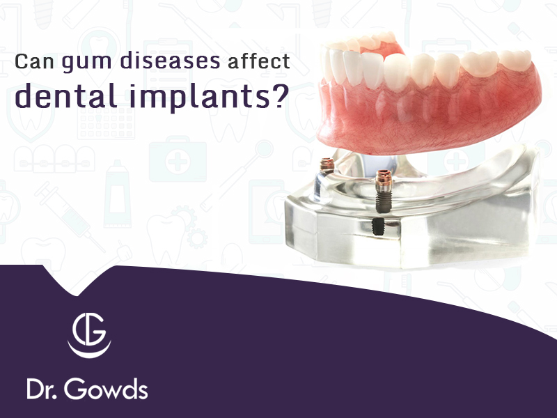Could Gum Diseases Affect Your Dental Implants?