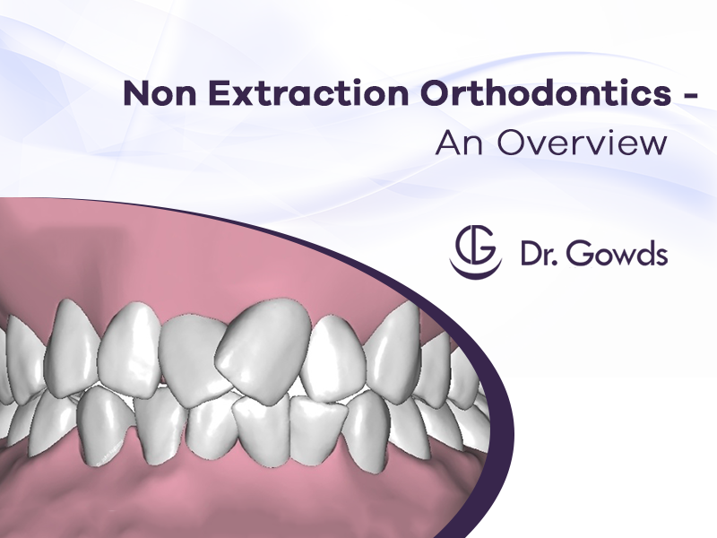 Non Extraction Orthodontics: An Overview